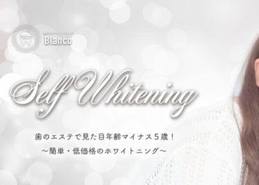 歯のホワイトニングBlanco(ブランコ)岐阜