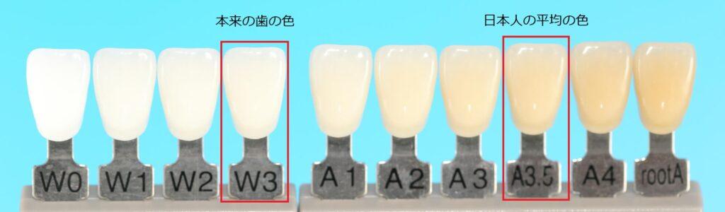 歯の色一覧